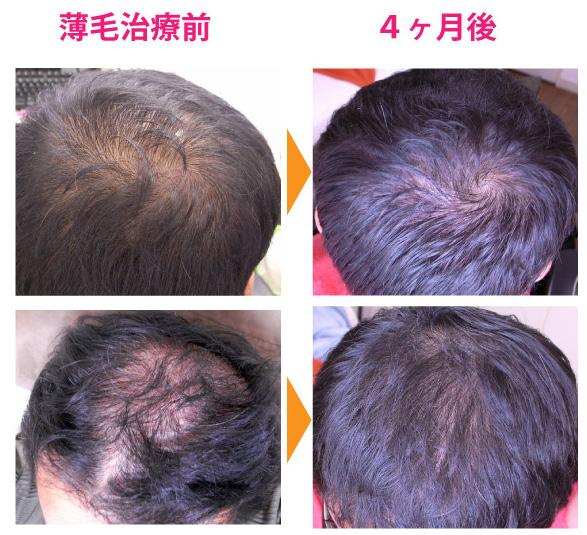 治療前と治療後の比較写真