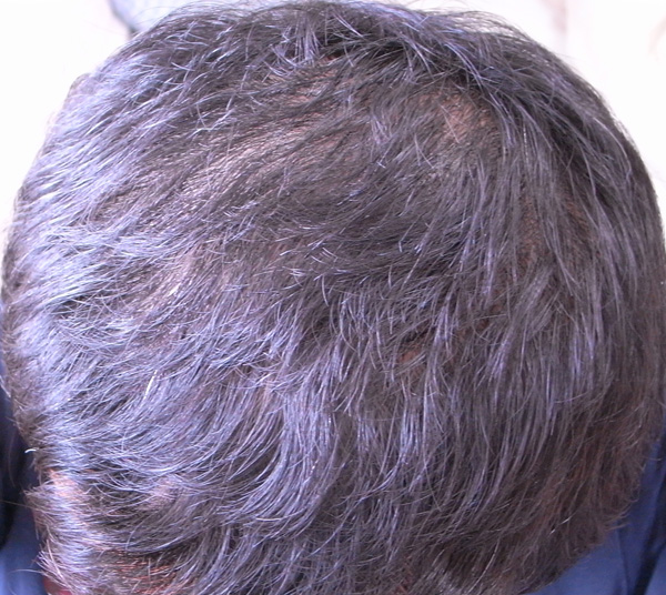 治療後の頭頂部