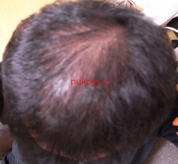 薄毛治療前の写真です。かなり禿げてます。