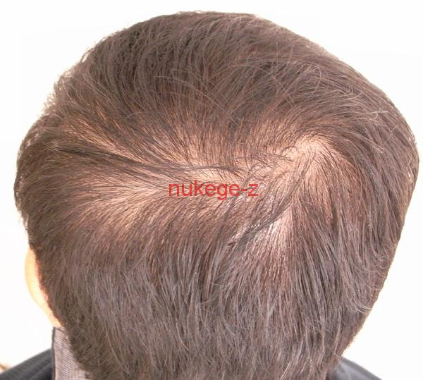 治療前の後頭部