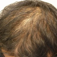 治療前の私の頭頂部